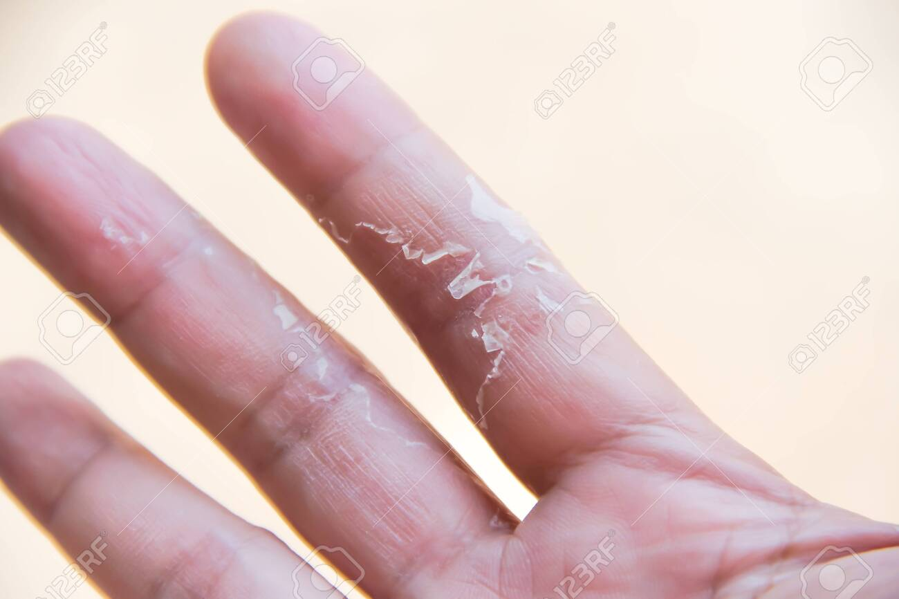 Asian woman palm right with flaky peeling on the ring finger hand , allergic to dish washing liquid or allergic to detergents - 147412273