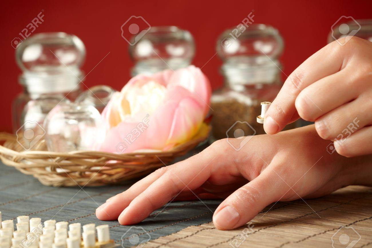 TCM Traditional Chinese Medicine. Hand applying mini moxa stick therapy, natural herbs in glass jars in background Stock Photo - 11956961