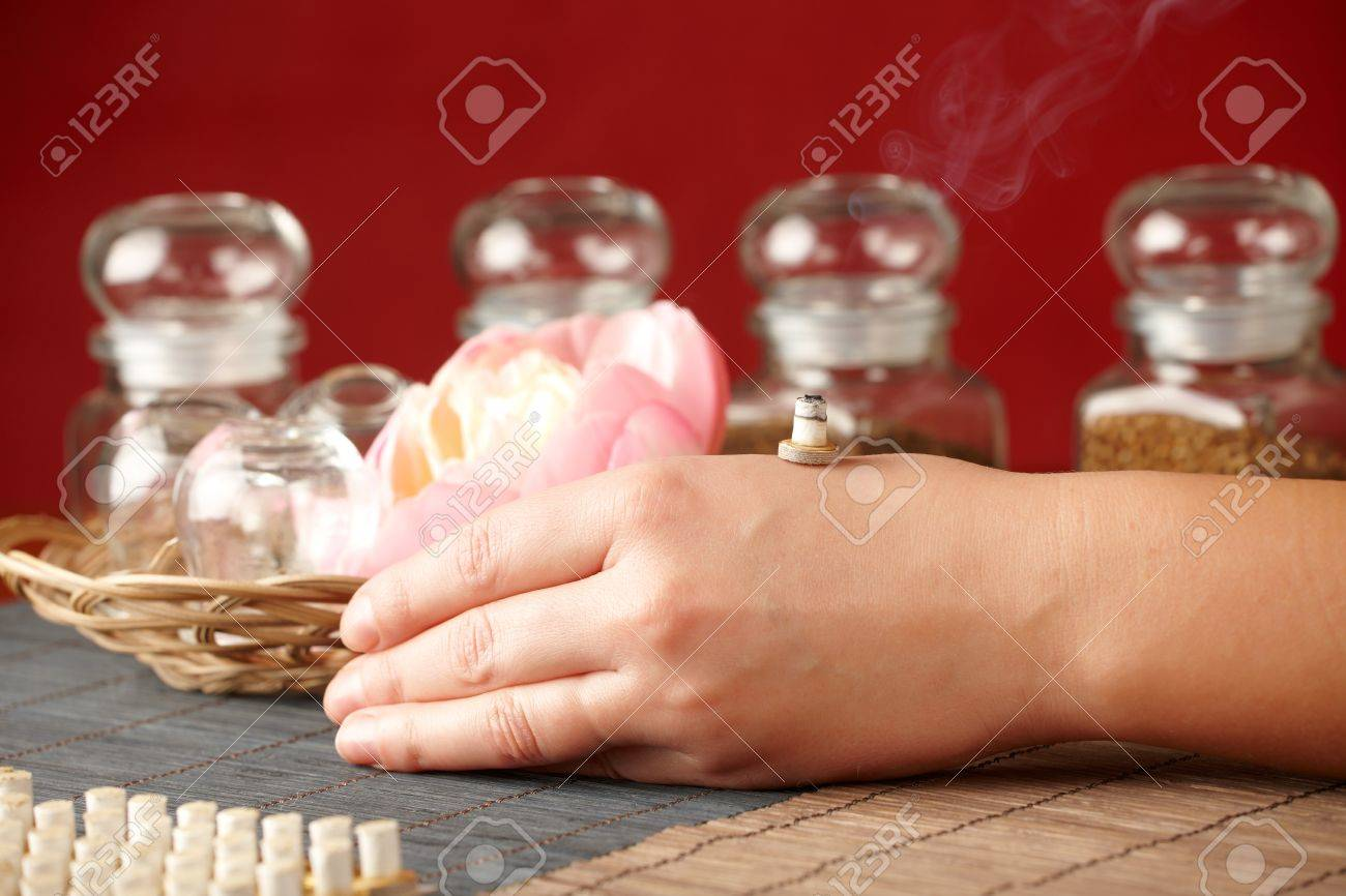 TCM Traditional Chinese Medicine. Smoking mini moxa stick, flower and natural herbs in glass jars in background. Stock Photo - 11956962