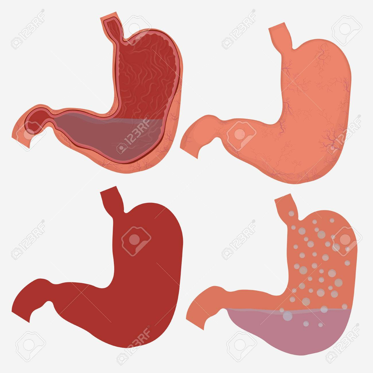 Stomach Vector Digestive Diagram Set Human Anatomy Image Illness