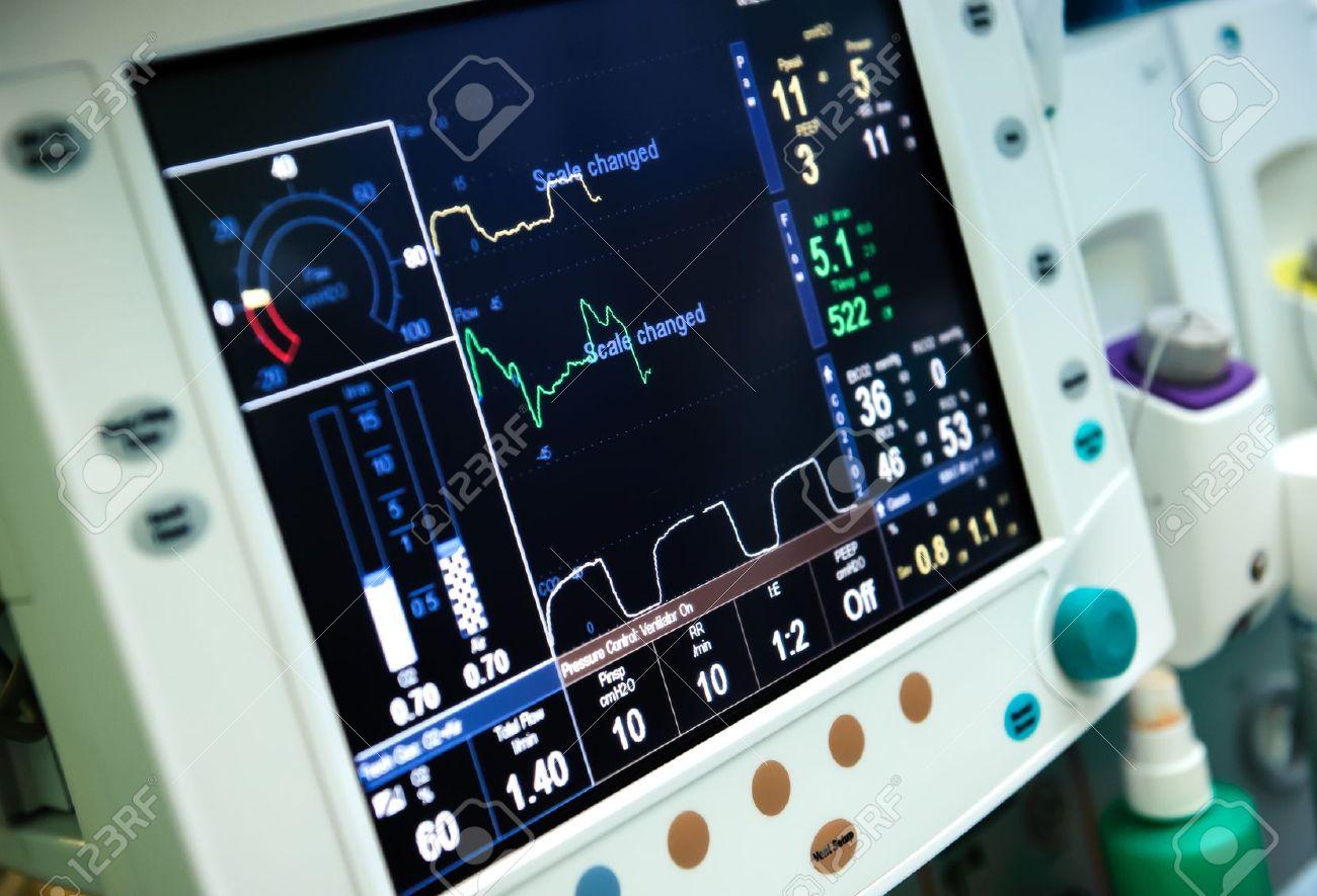 Mechanical ventilation equipment Stock Photo - 15639226
