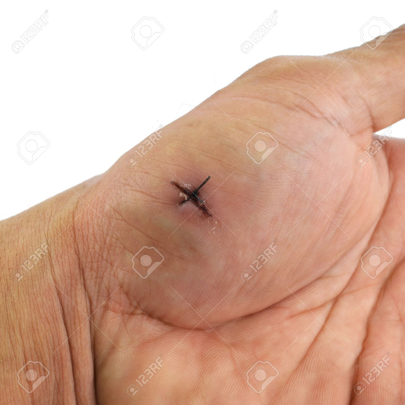 List of Synonyms and Antonyms of the Word: hand surgical stitches