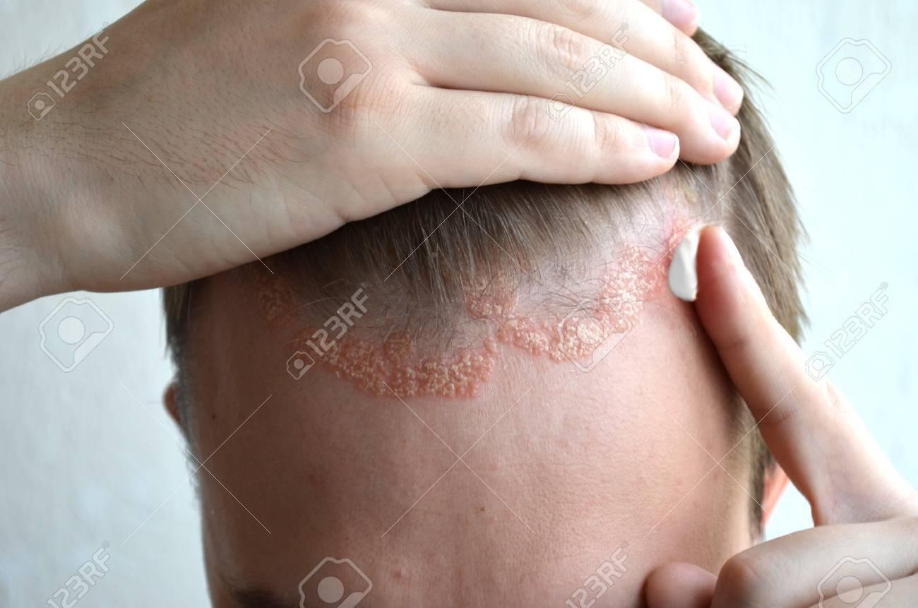 性 皮膚 炎 薬 アトピー