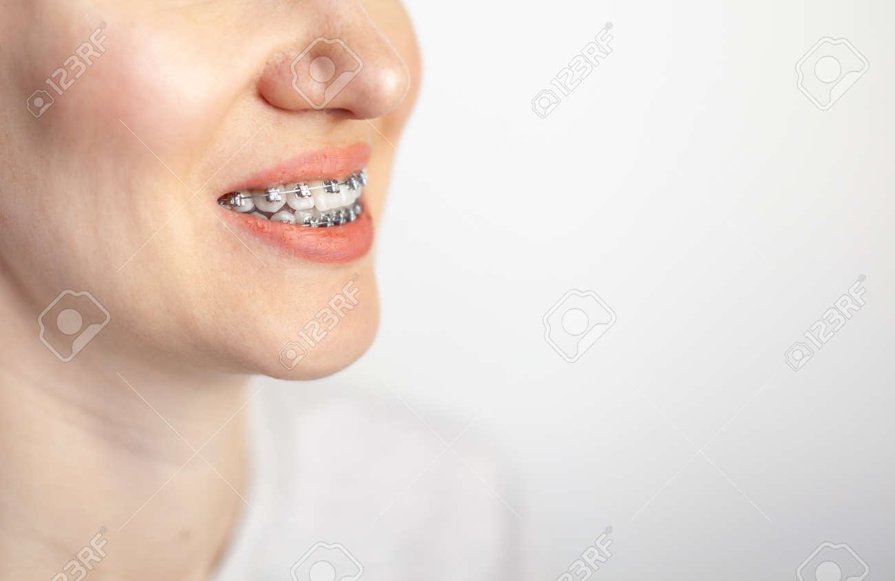 The smile of a young girl with braces on her white teeth. Teeth straightening. Malocclusion. Dental care. - 166354656