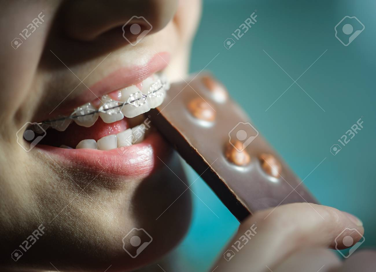 young girl eating chocolate, with ceramic teeth braces - 69777149