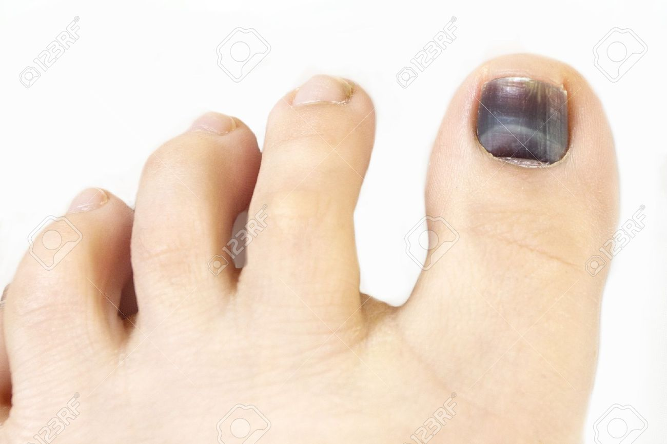 Subungual Hematoma Blue And Black Toe Nail Stock Photo, Picture And ...