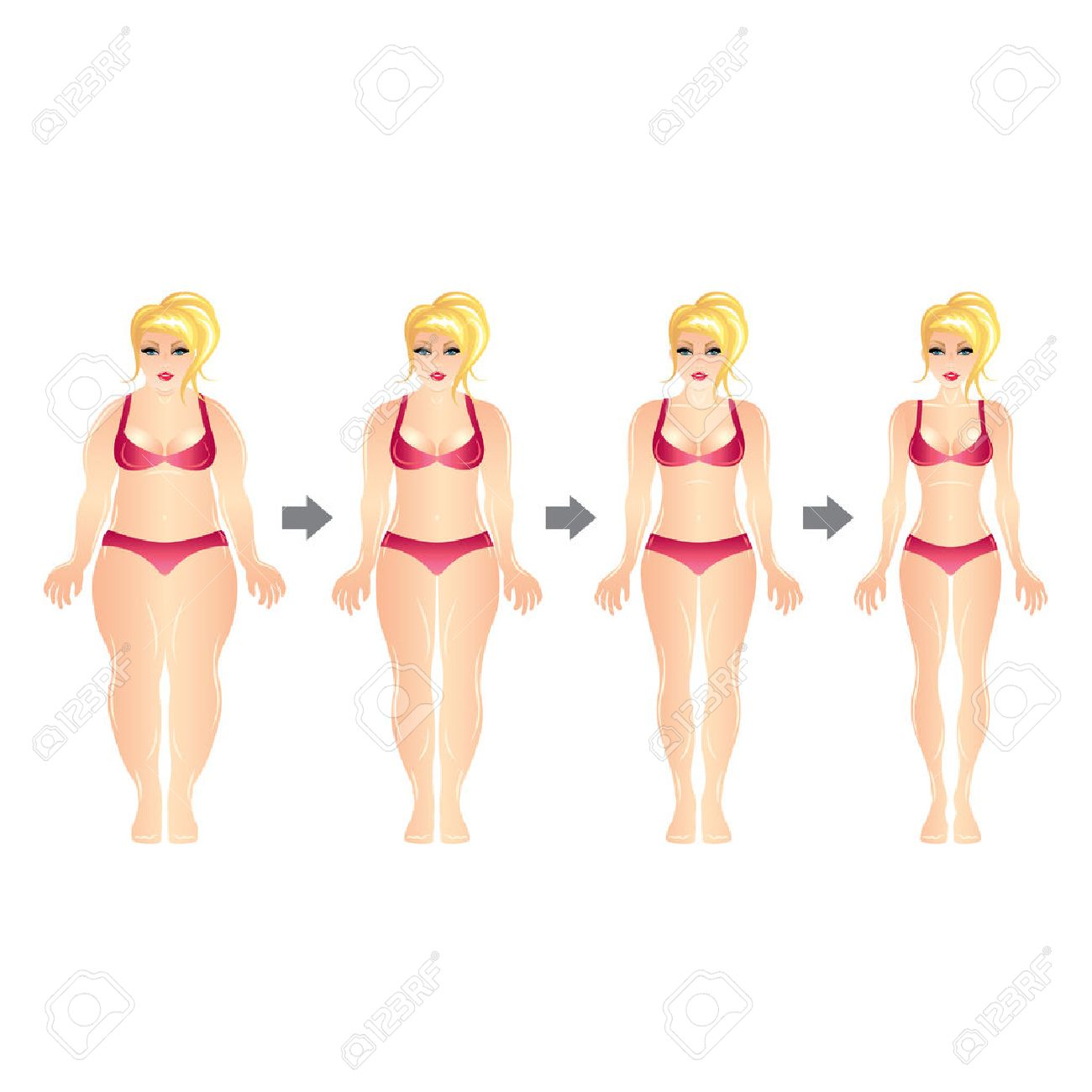 791 Liposuction Stock Illustrations, Cliparts And Royalty Free ...