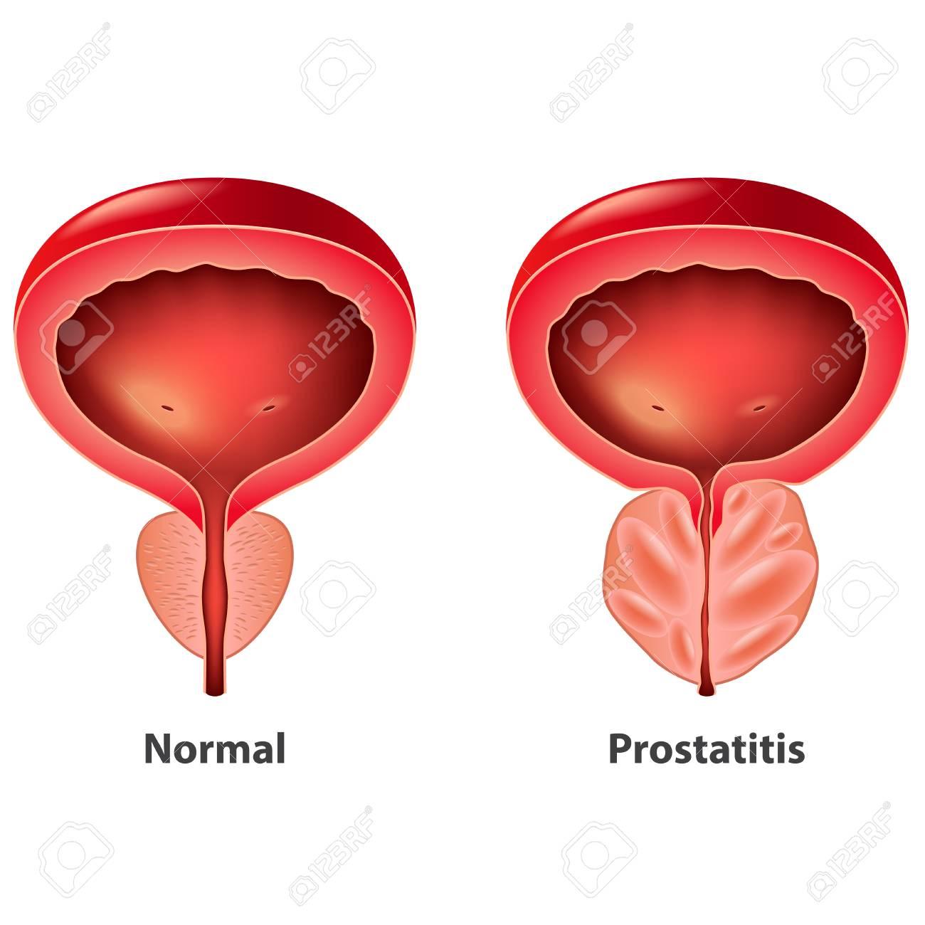 Prosztatagyulladás kezelése házilag, Prostatitis kezelési tippek