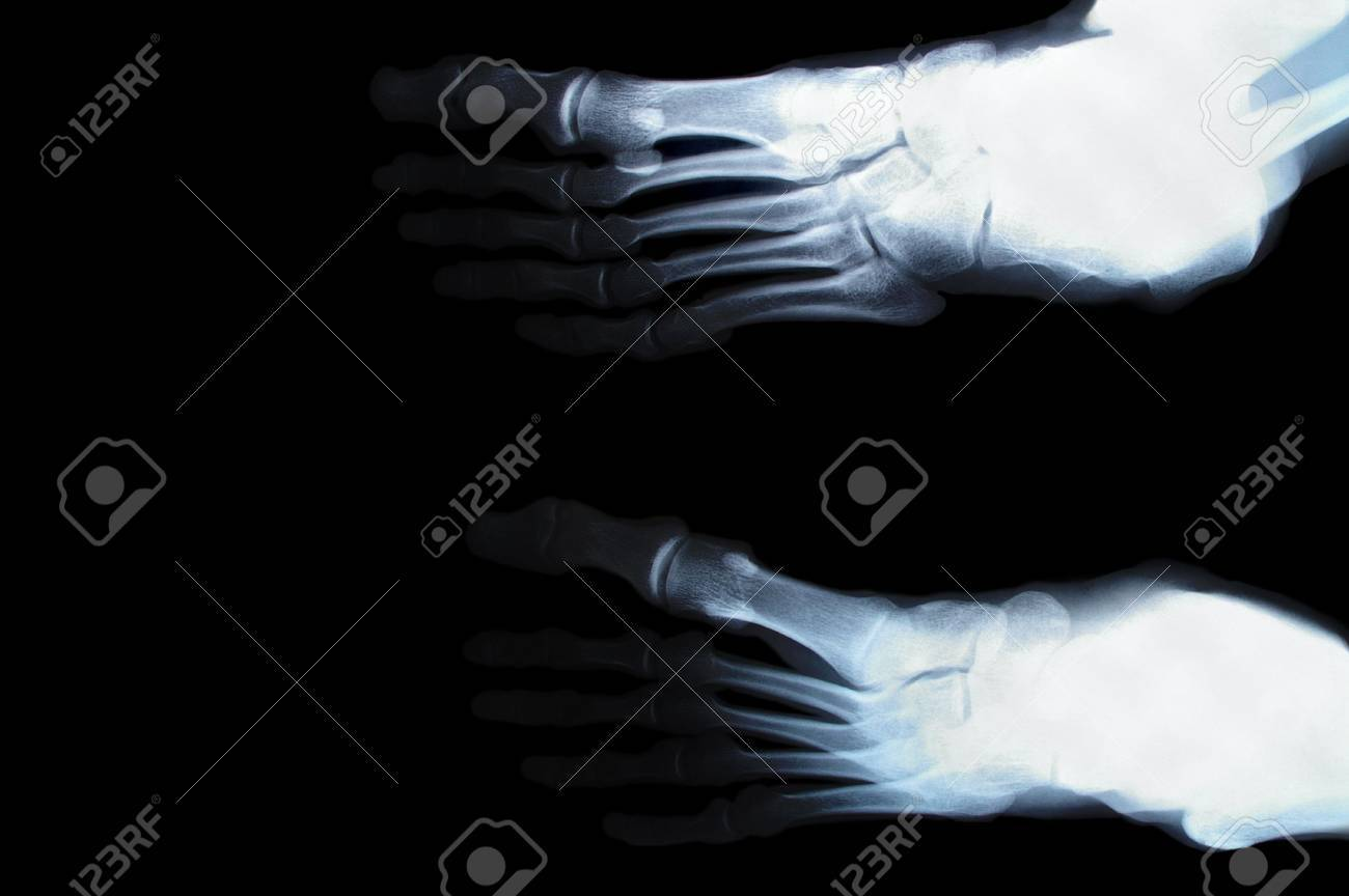 human foot toes close up xray picture Stock Photo - 7855780