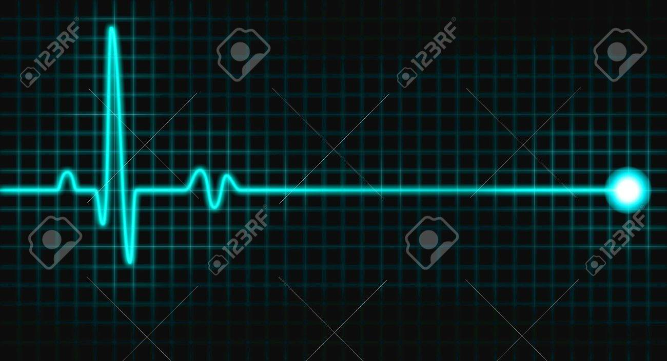pulse graph Stock Photo - 11727680
