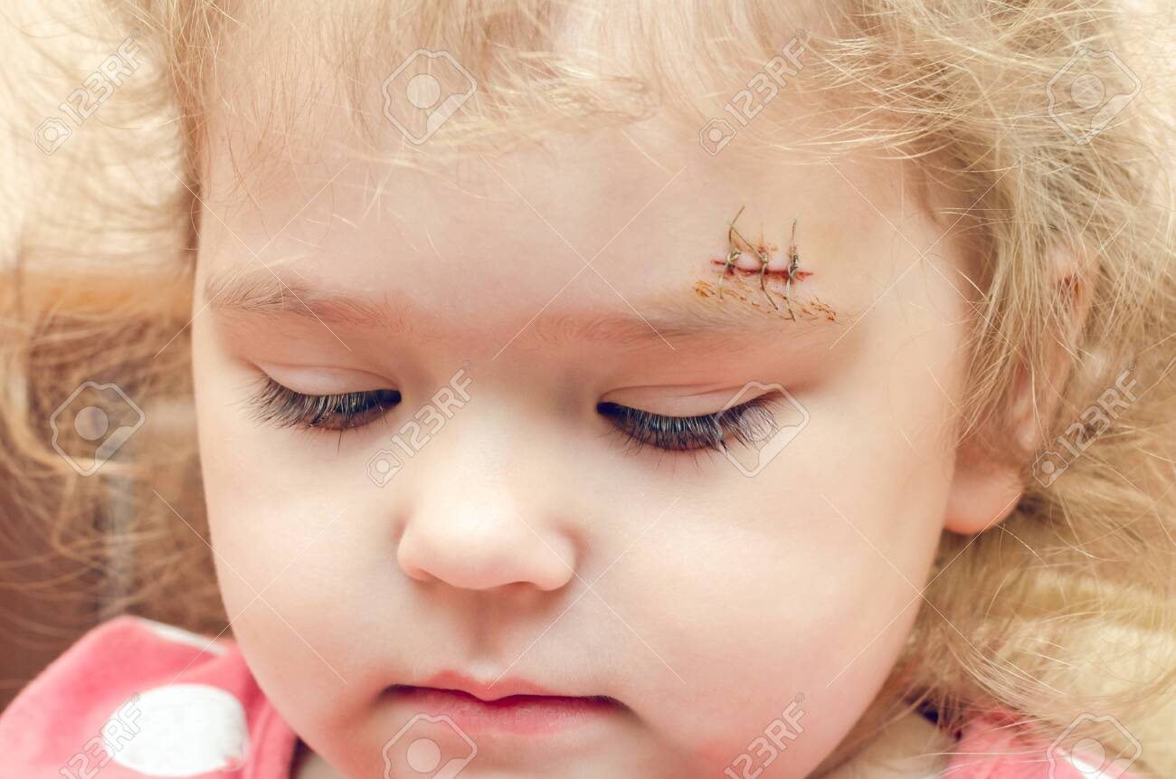 A Little Girl With A Scar Above Her Eyebrow A Deep Wound Sewn Stock Photo Picture And Royalty Free Image Image 137273822
