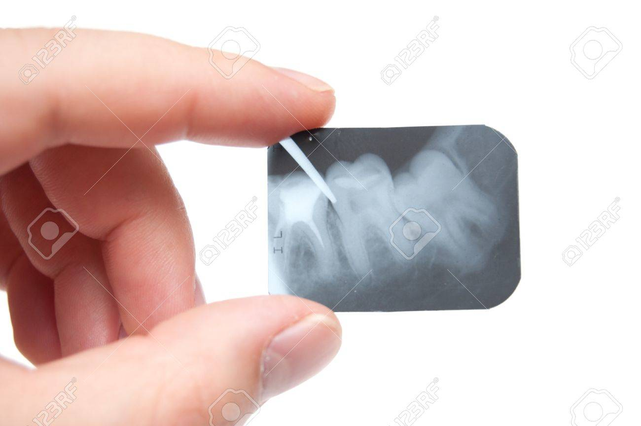 tooth x-ray in the hand Stock Photo - 8206142