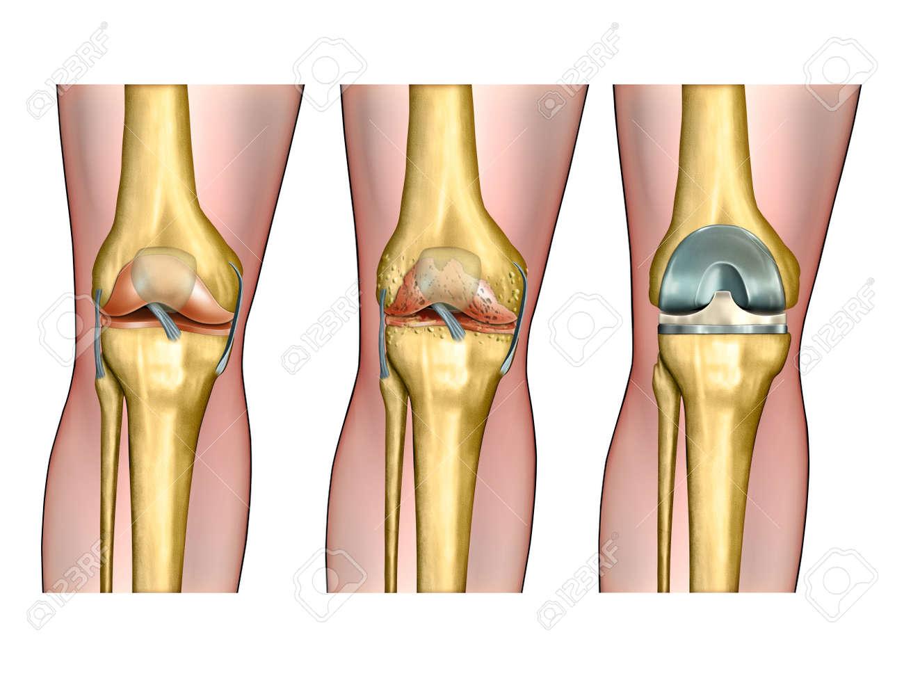 artritis inflamatoria rodilla