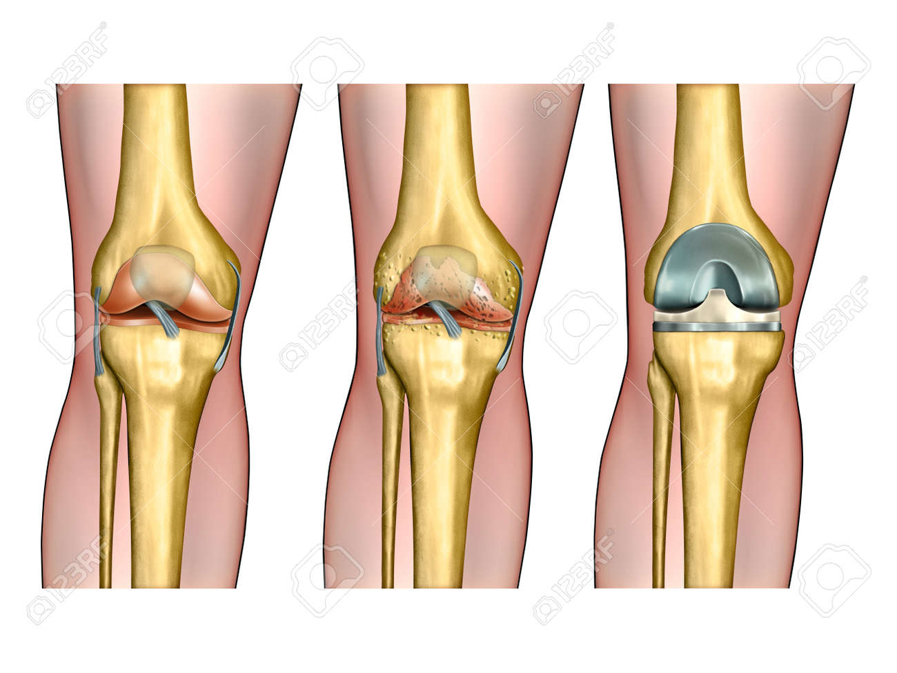 Healthy Knee Anatomy Degenerative Arthritis Of The Knee And Stock