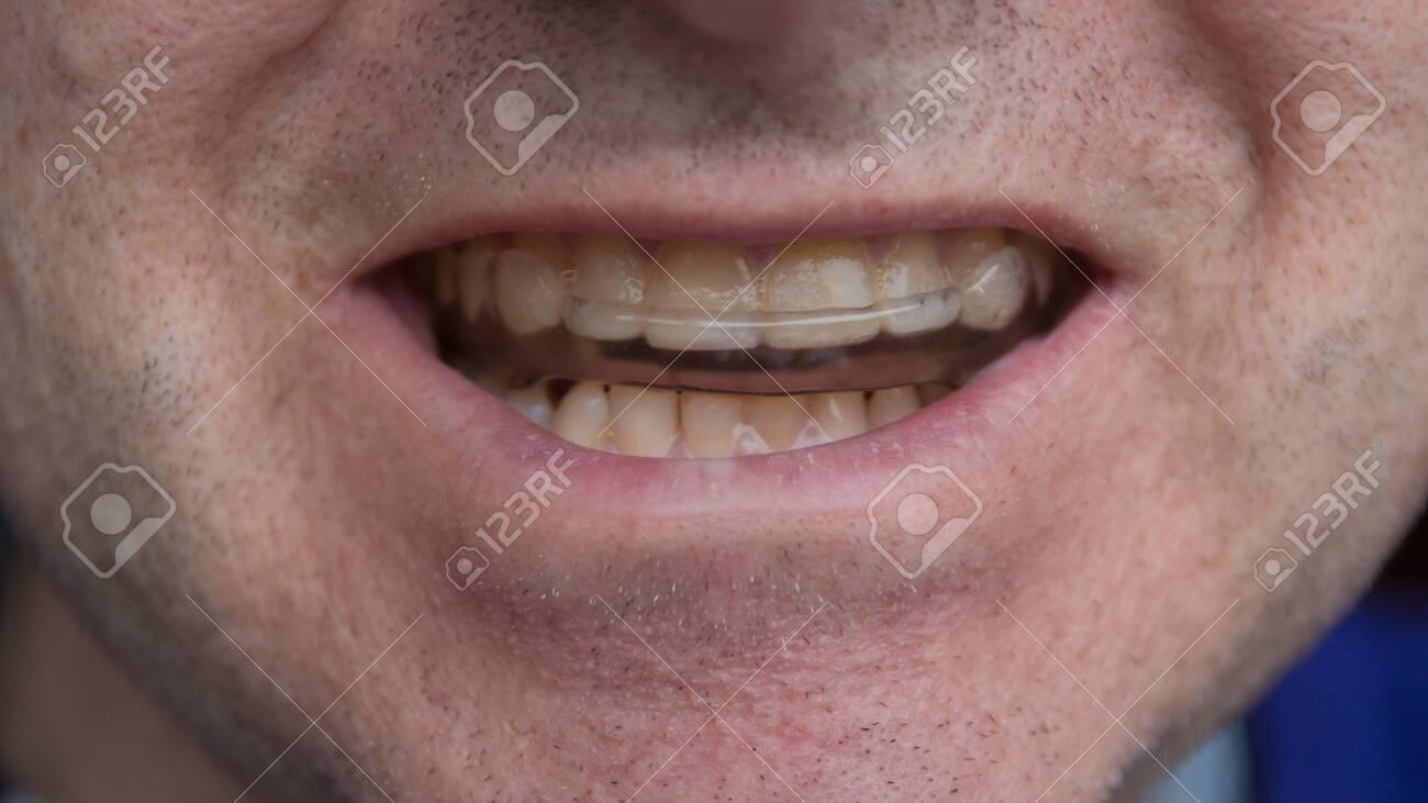 man wearing tooth protecting mouthguard closeup - 121766963