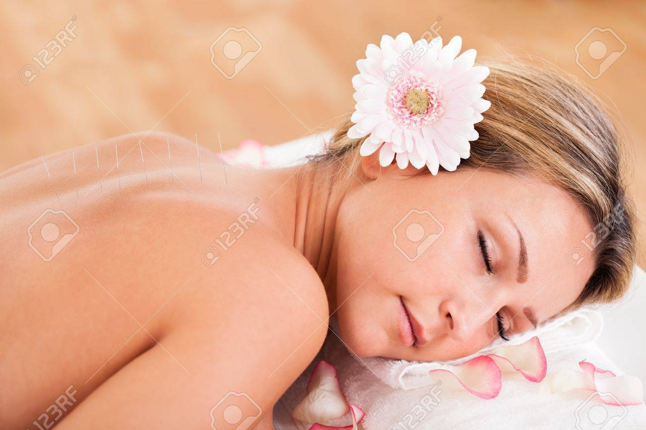 Acupuncture needle inserted by experienced professional only. Stock Photo - 16521956