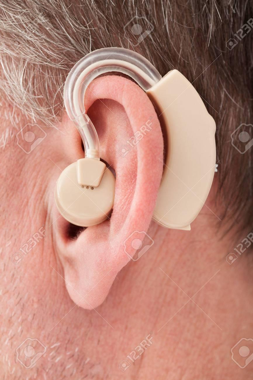 Фото слухового аппарата человека 3