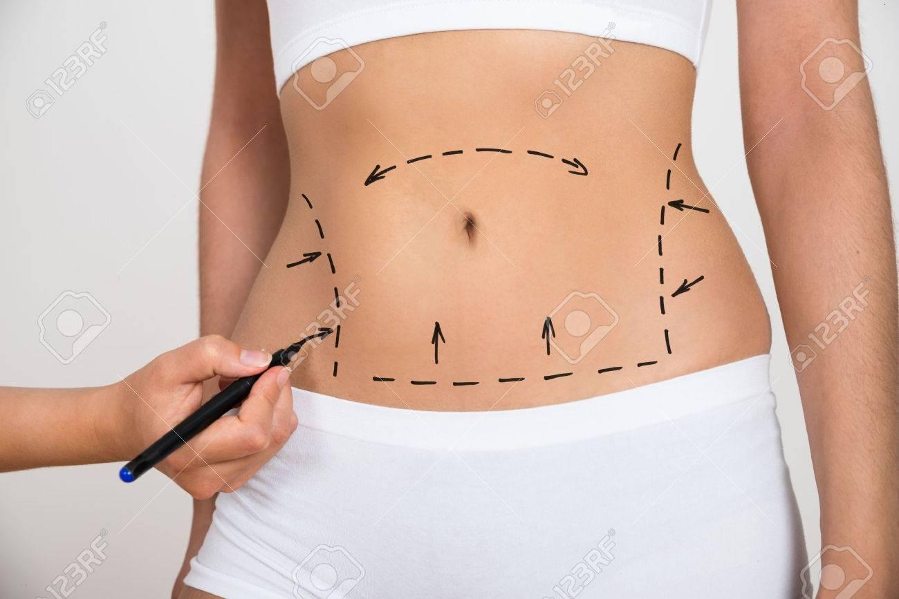 celulitis en abdomen