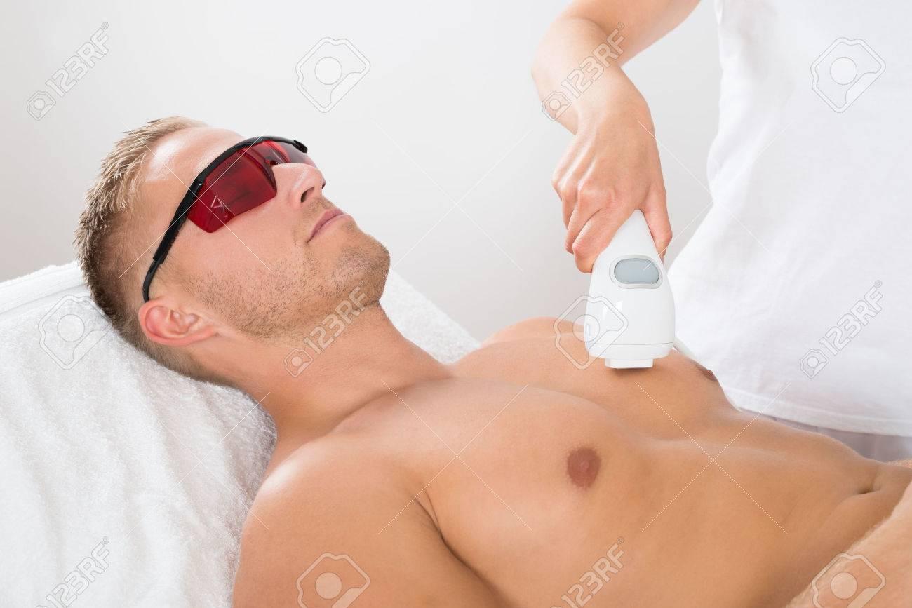 laser epilation man