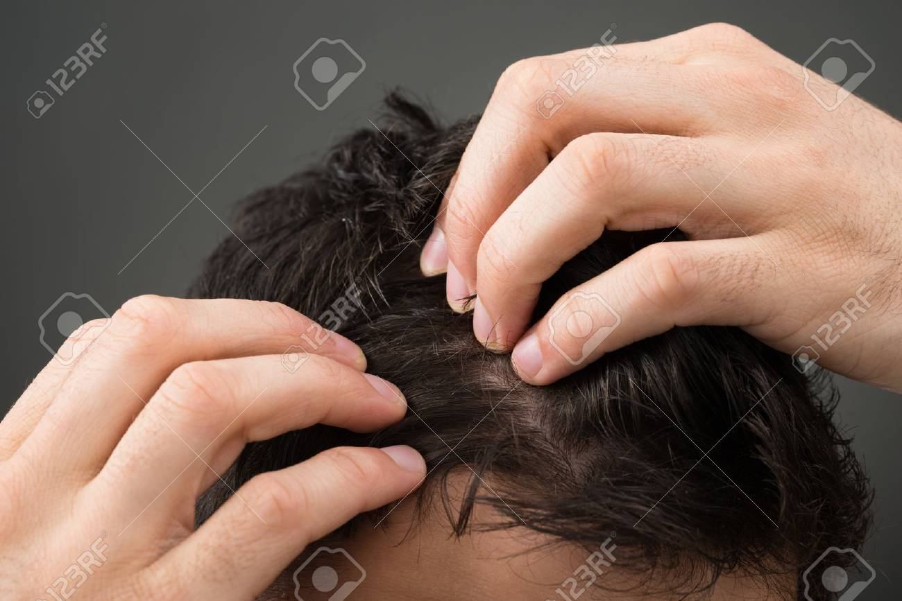 Cropped image of man suffering from hair loss against gray background - 50691788