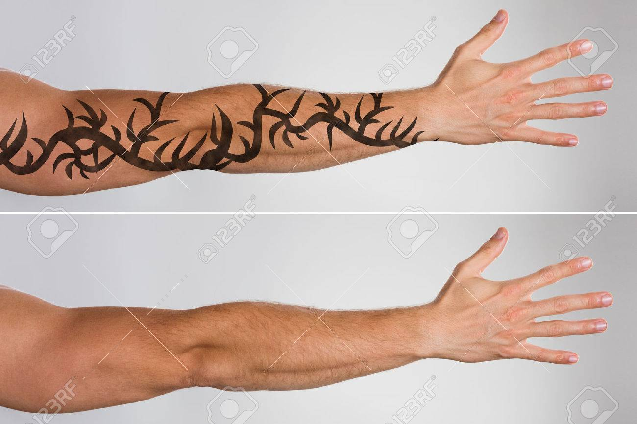 Attractive Man\'s Hand Before And After Laser Tattoo Removal ...