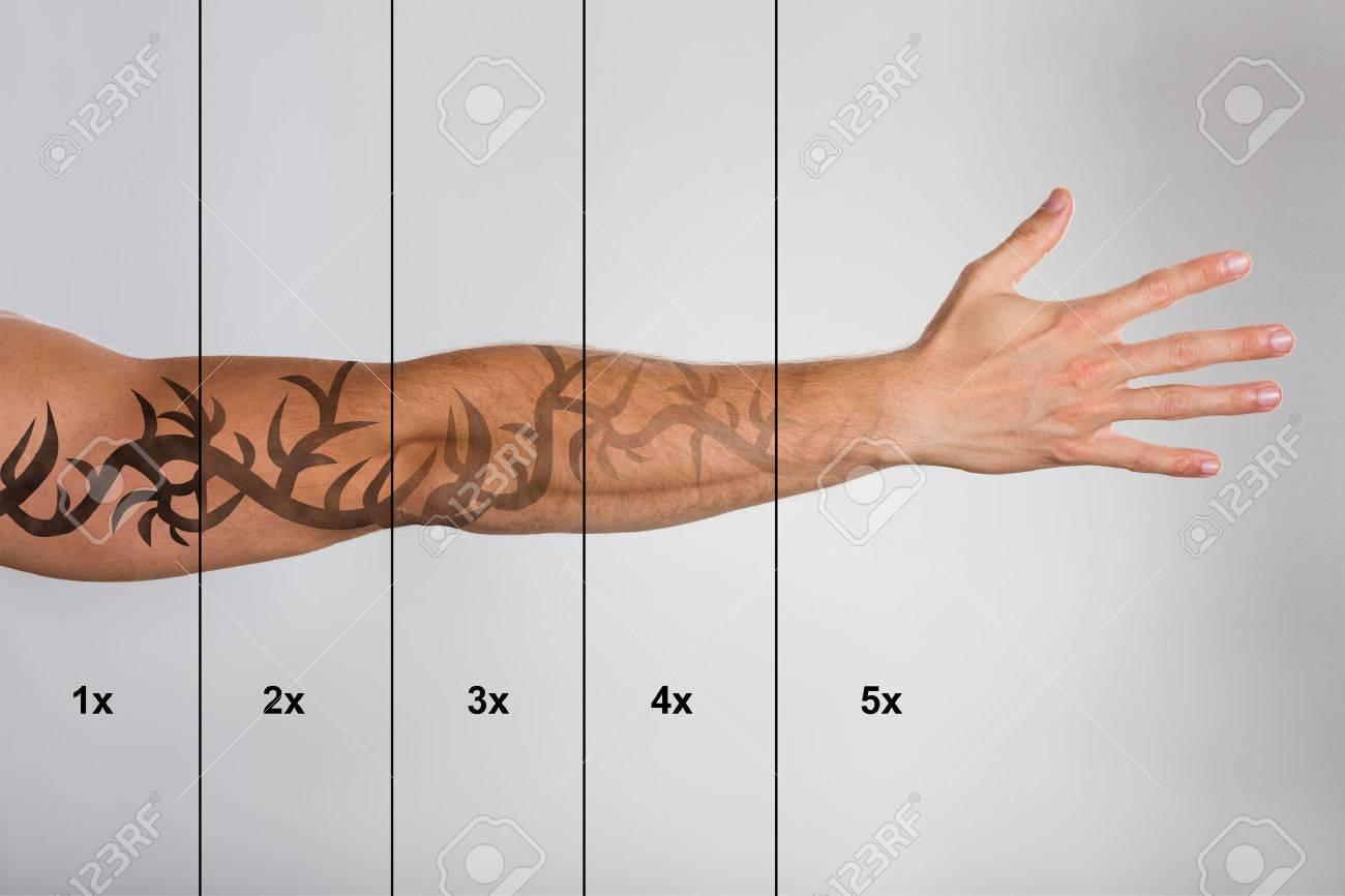 Détatouage laser sur le fond gris contre la main de l'homme Banque d'images - 70448745