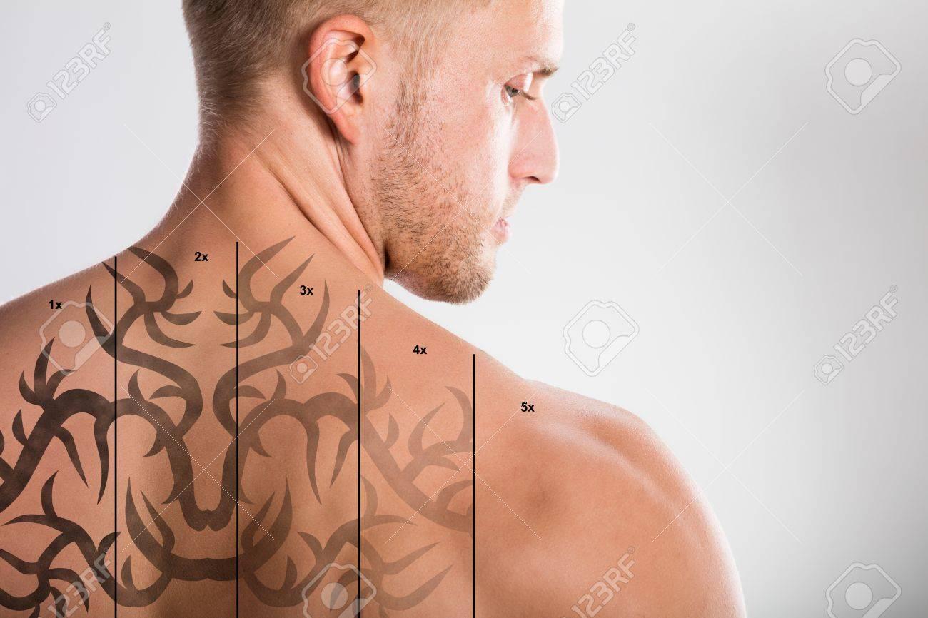 Laser Tattoo Removal On Shirtless Man's Back Against Grey Background Standard-Bild - 70794995