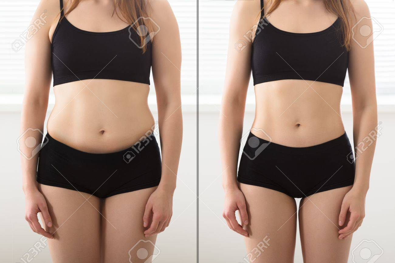 Close-up Of Fat And Slim Woman Standing Opposite To Each Other Standard-Bild - 83059055