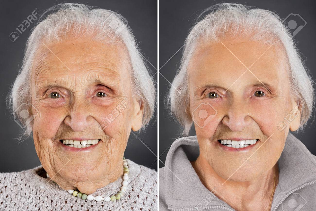 Senior Woman Anti Aging Skin Treatment Before And After Stock