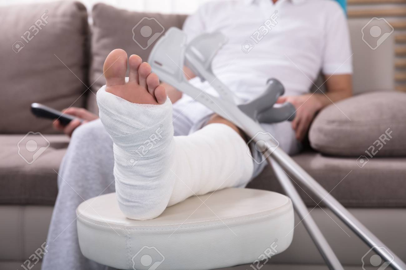 Young Man With Broken Leg Sitting On Sofa Holding Remote - 93467373