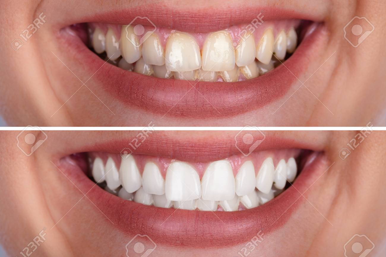 Close-up Of A Smiling Woman's Teeth Before And After Whitening - 108385047
