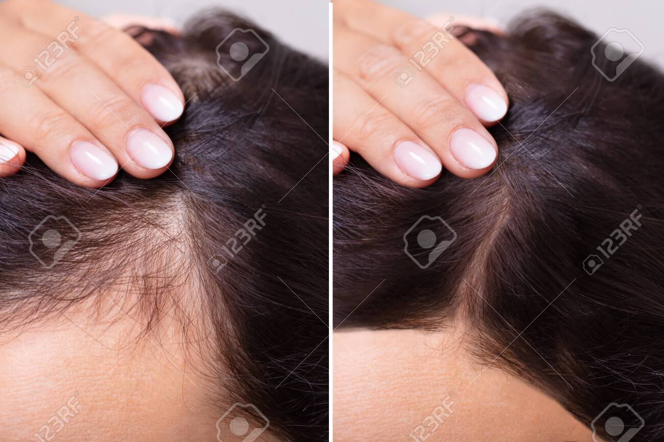 Woman Before And After Hair Loss Treatment - 128599629