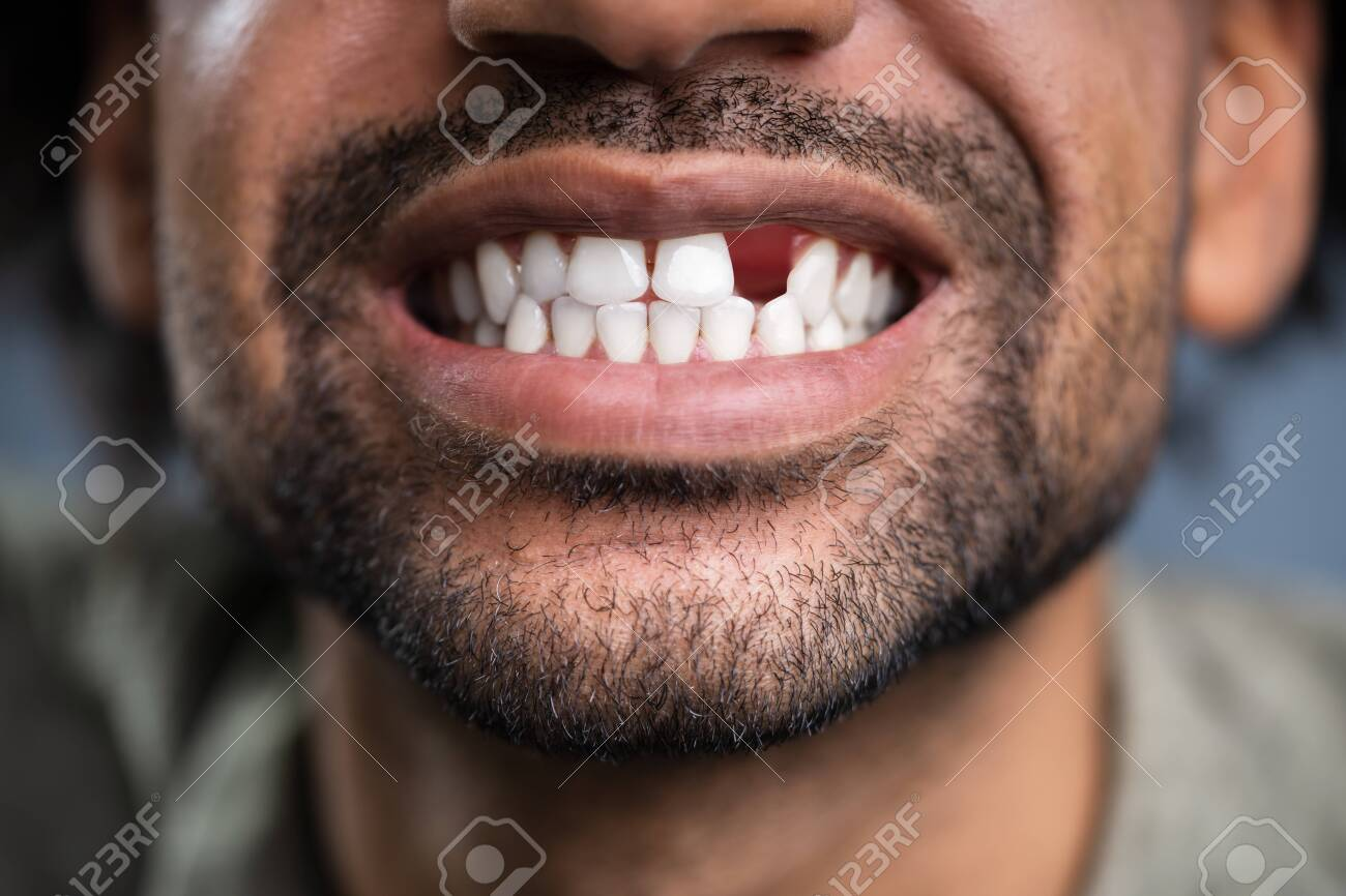 Close Up Photo Of Young Man With Missing Tooth - 134944771