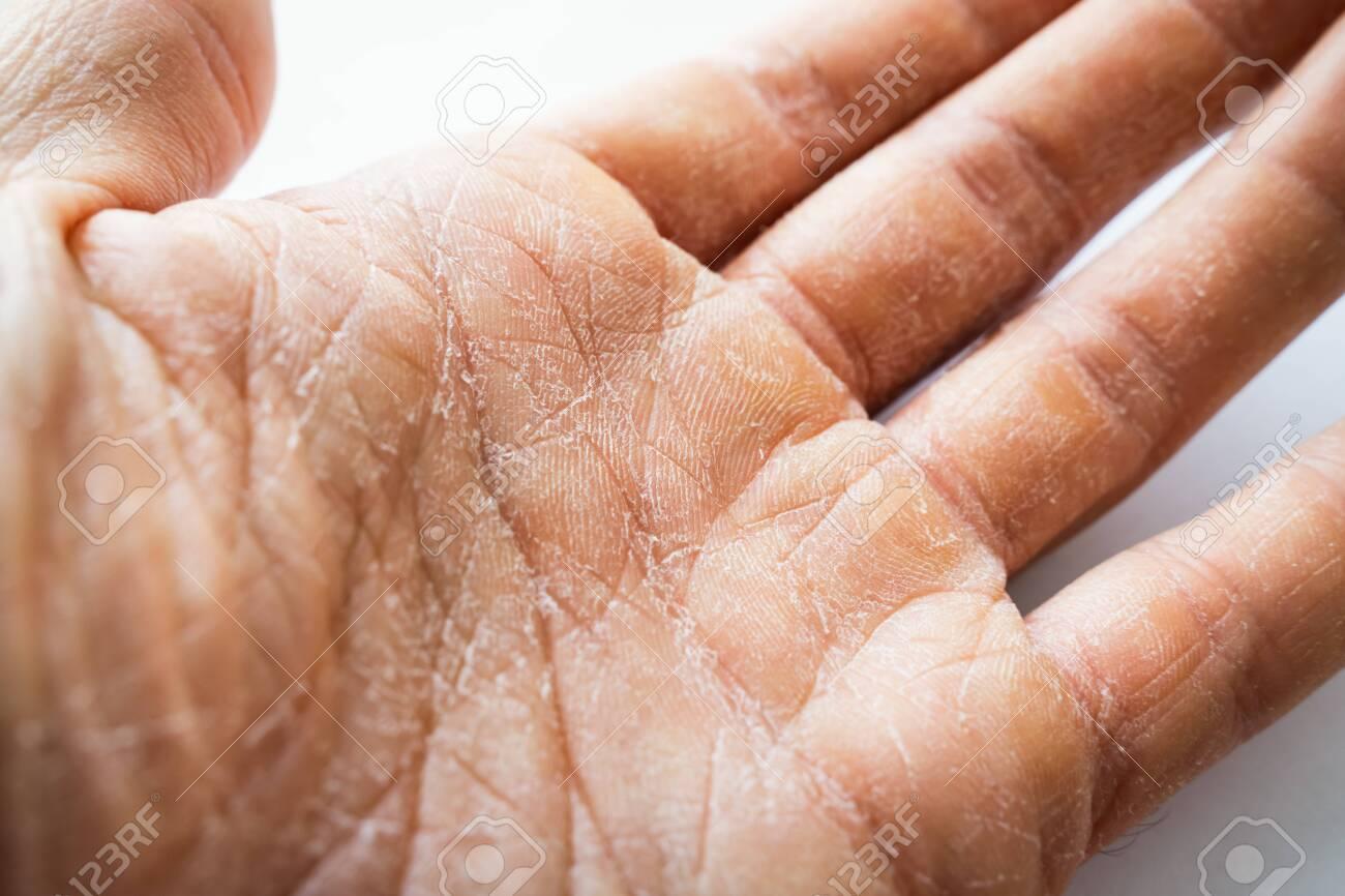 skin peeling off