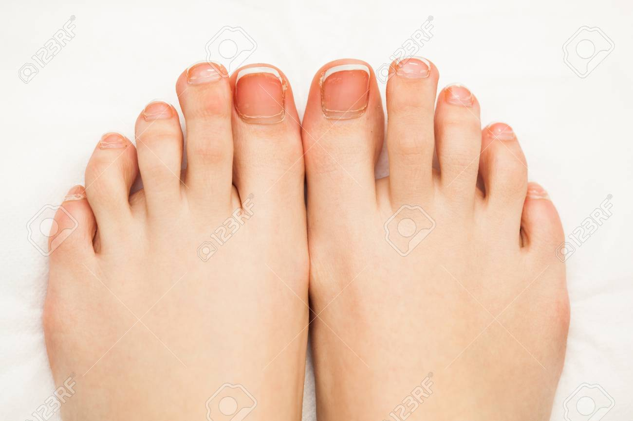 Female Toe Nails Without Pedicure. Lack Of Nutrients. Close-up ...