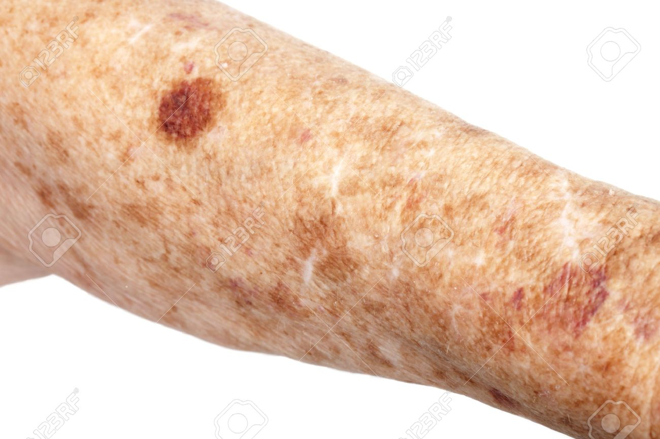 Female senior citizen arm with age spots also known as liver