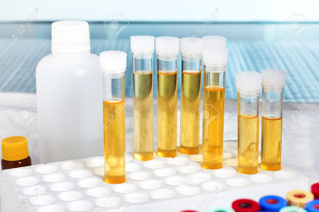 rack with several tubes with urinalysis in a laboratory workbench / analysis of urine in lab - 35186532