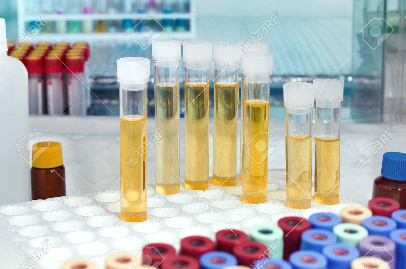 rack with several tubes with urinalysis and the background tubes for blood samples in the laboratory workbench / analysis of urine tubes in lab - 35289293
