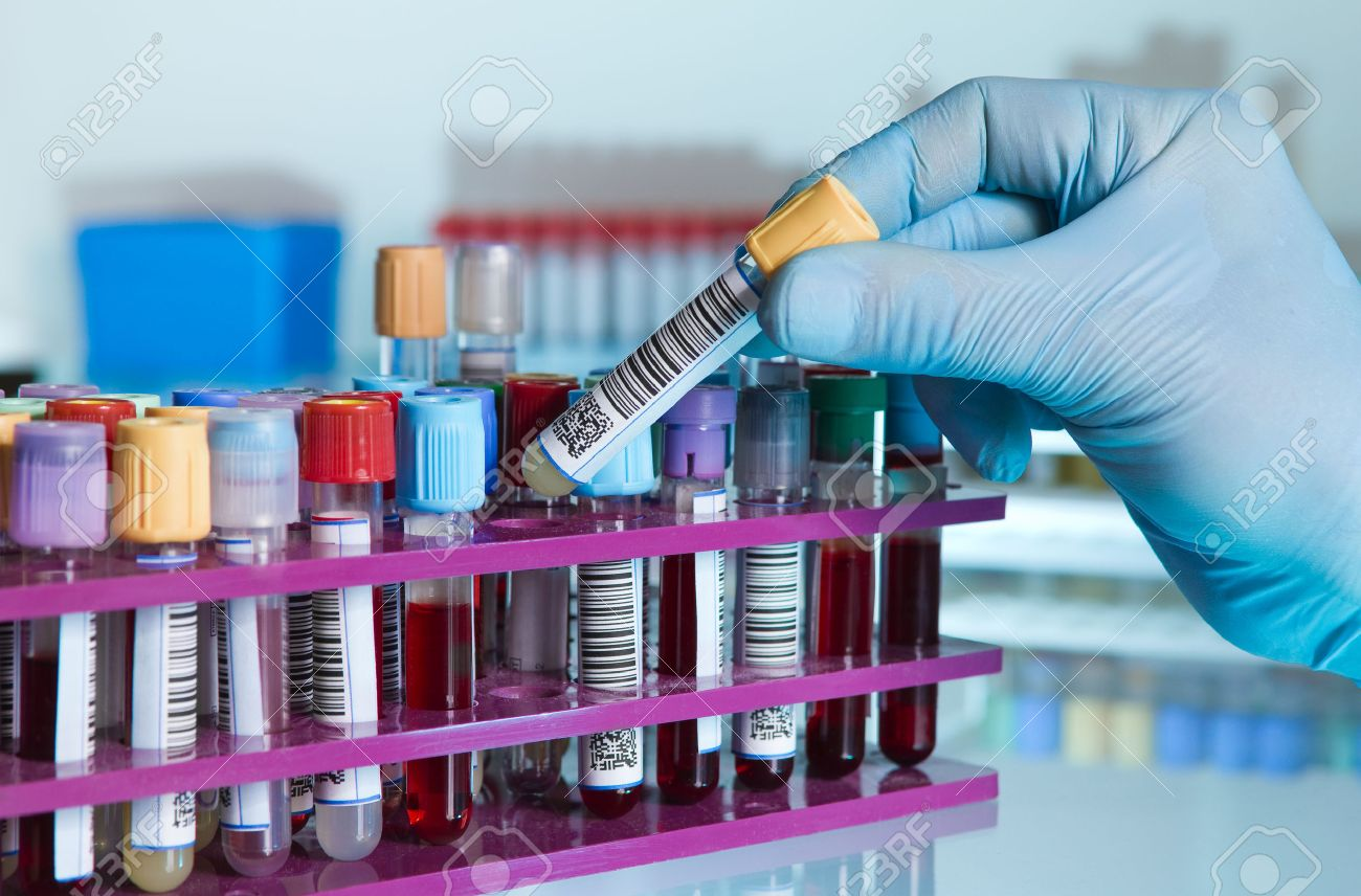 hand of a lab technician taking a tube of blood from a rack and the background color tubes with samples from other patients hand of laboratory technician holding a blood tube for analysis - 39590351