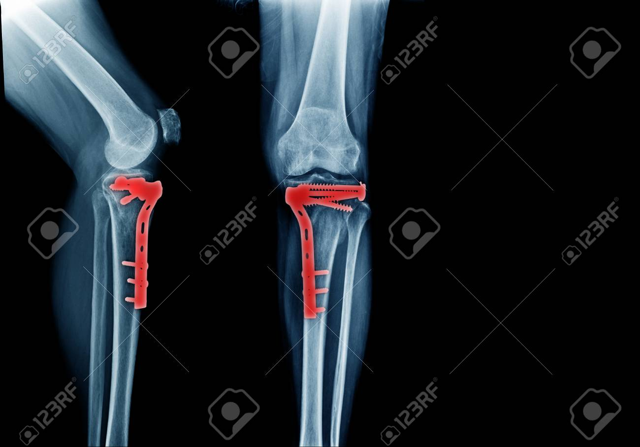 Fracture Tibia Bone And Post Operation Fixation Anterior And Stock Photo Picture And Royalty Free Image Image 101010642