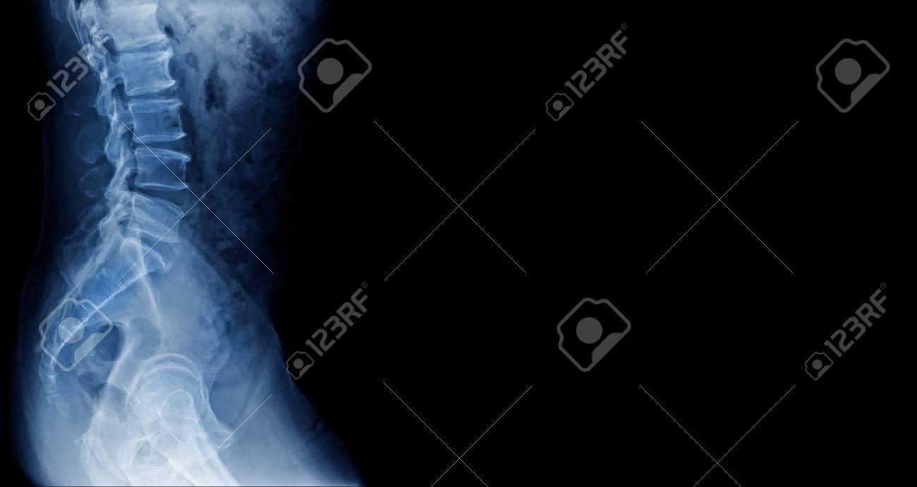 x-ray lumbar spondylosis - 105737674