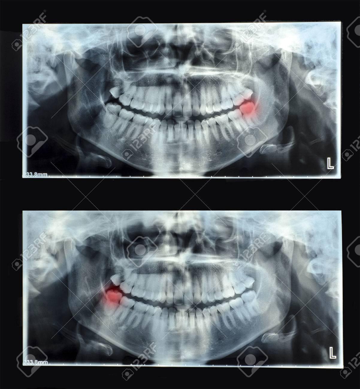 Panorámica Dental De Rayos X Con La Muela Del Juicio Superior ...
