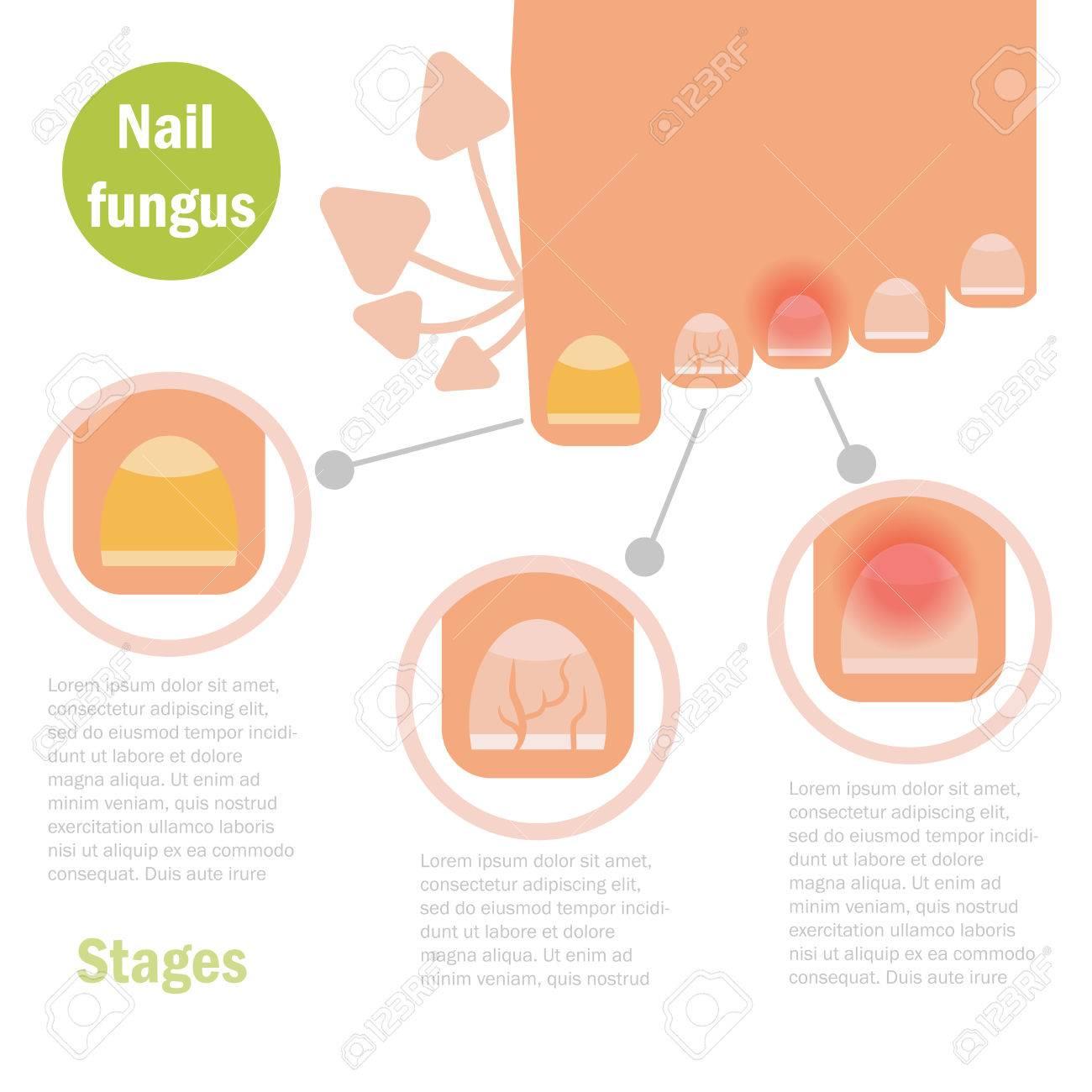 Nail Fungus Infection. Vector. Cartoon Isolated Flat Royalty Free ...
