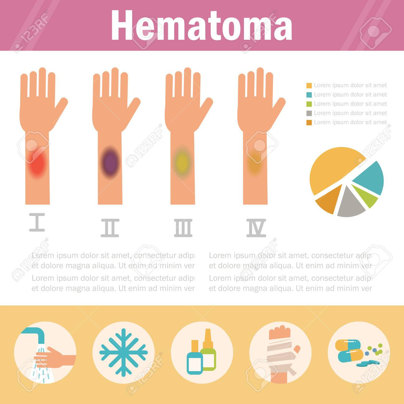 Hematoma  Stages  Isolated