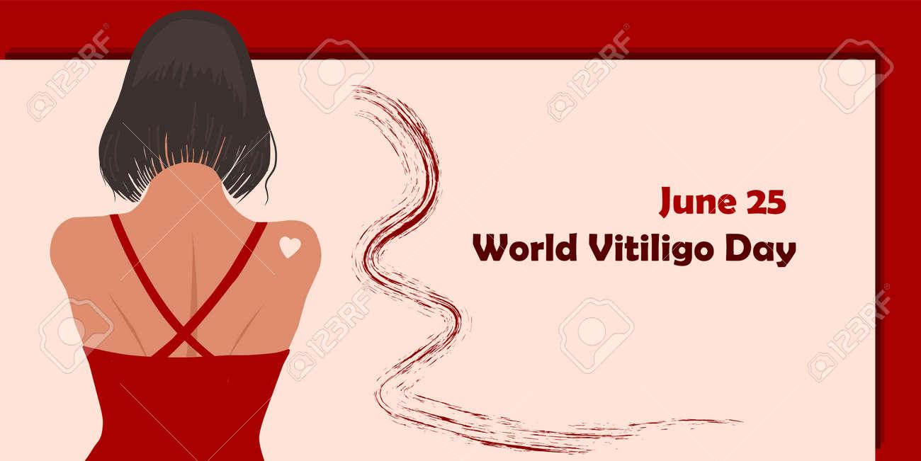 June 25 - World Vitiligo Day. Pigmentation disorders. Skin depigmentation. Vector illustration on the theme of rare diseases. Chronic skin disease. - 168914920