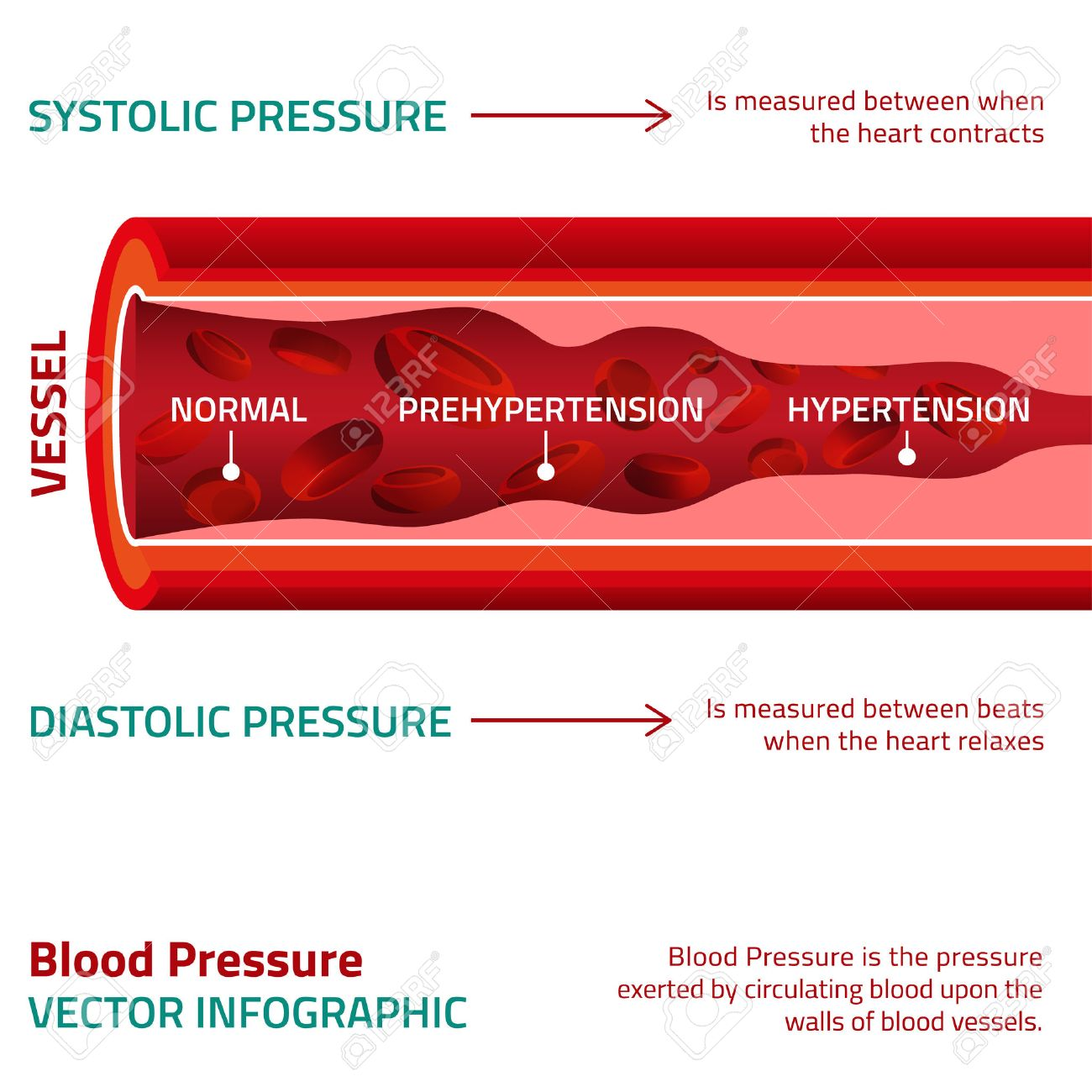 Beautiful vector illustration of blood pressure infographic. Abstract medicine concept. Useful for poster, indographics, placard, leaflet, brochure, print, book and advertisement graphic design. - 51897314