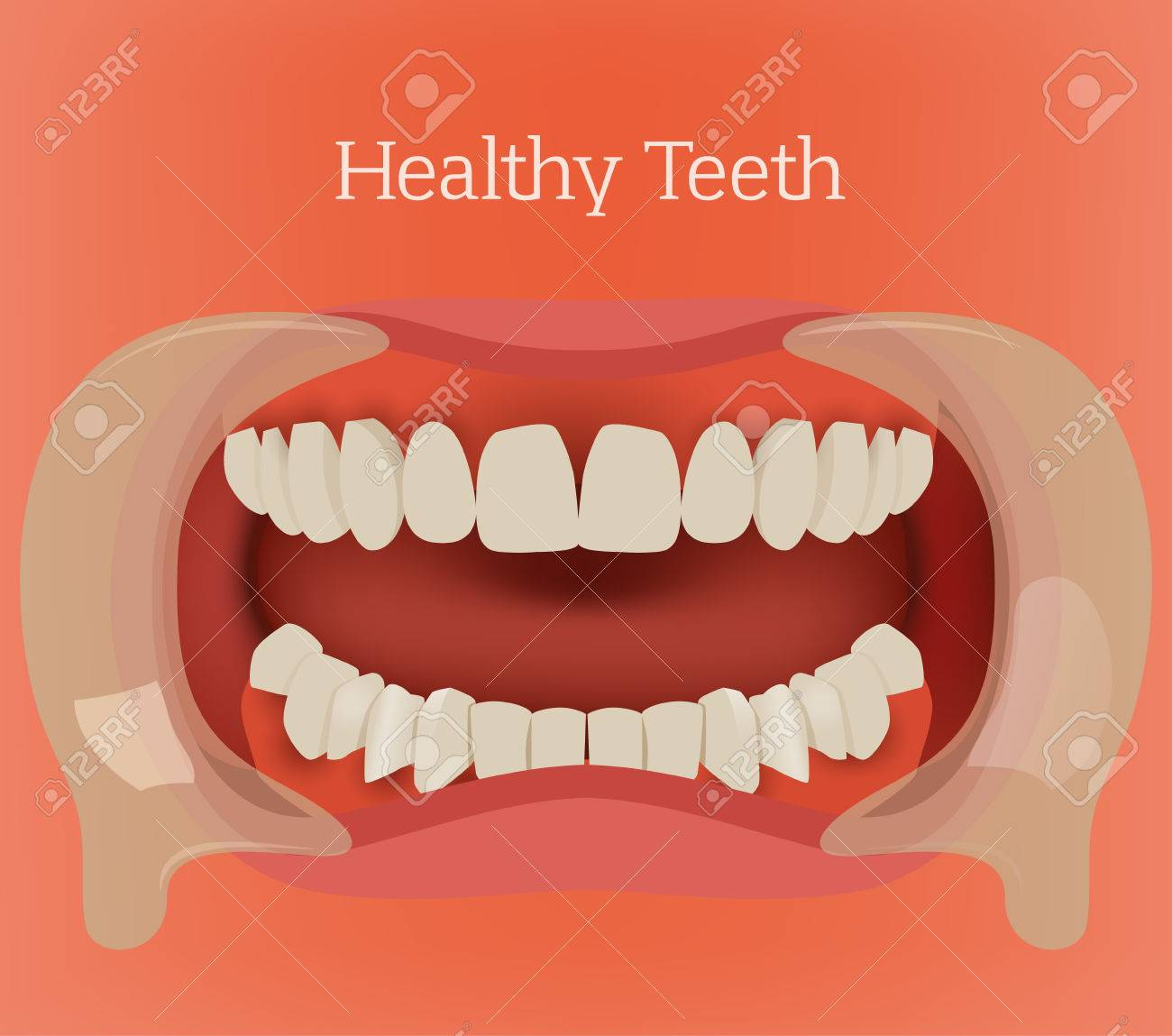 Healthy Teeth Illustration Vector Dental Image With Orthodontic