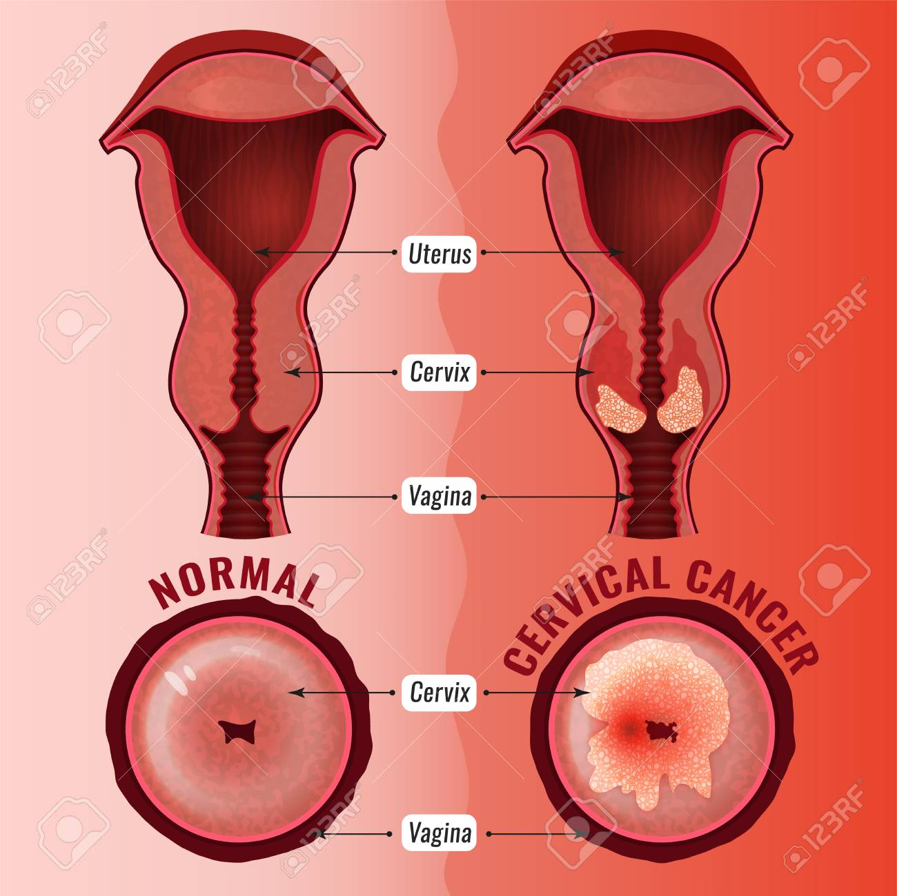 Cervical Cancer Development Image. Detailed Vector Illustration ...