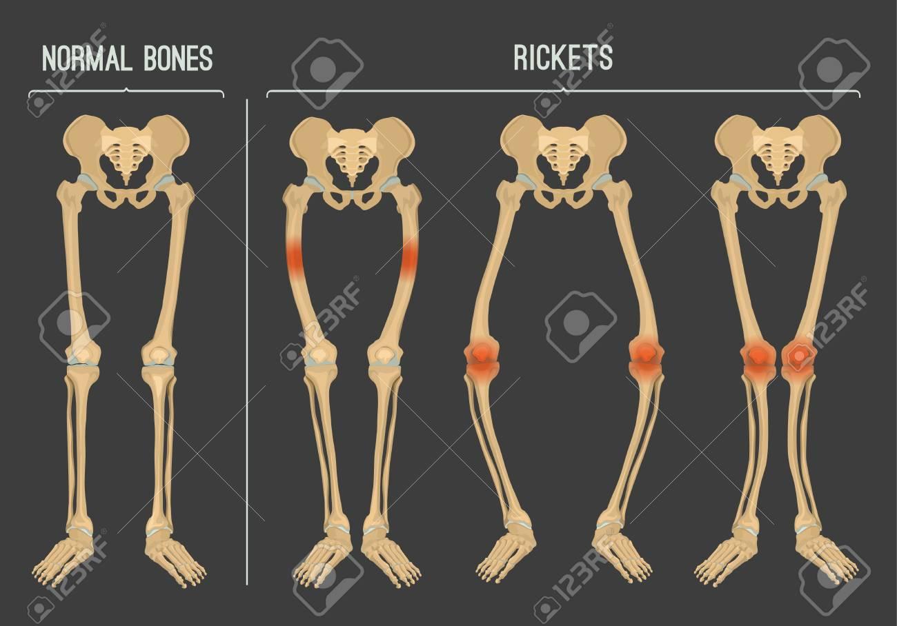 Normal Bones Versus Rickets And Osteomalacia Types Of Disease