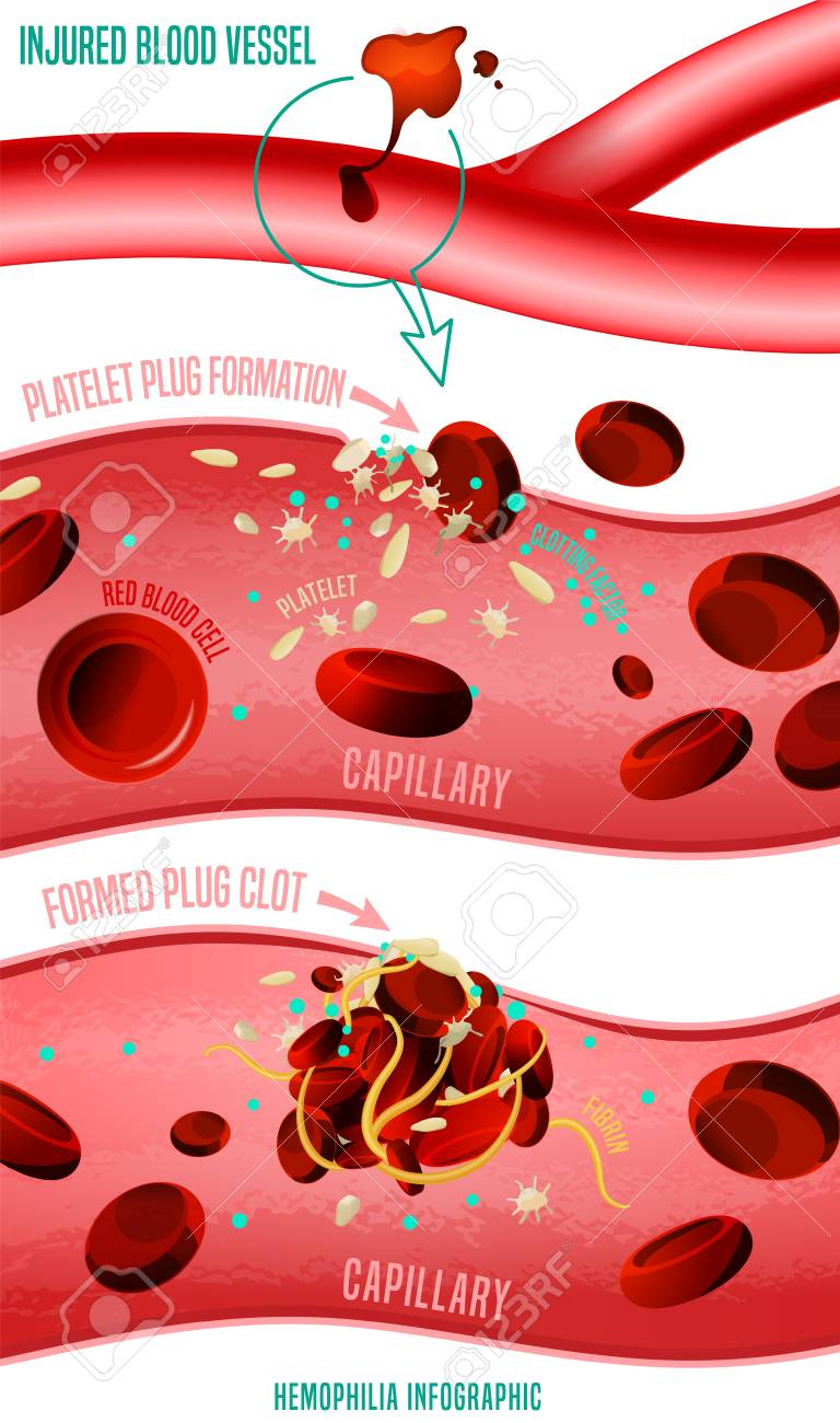 Blood clot formation. Hemophlia infographic facts. Vector illustration in bright colors isolated on white background. Medical, healthcare and scientific concept with useful data. Vertical poster. - 126607973